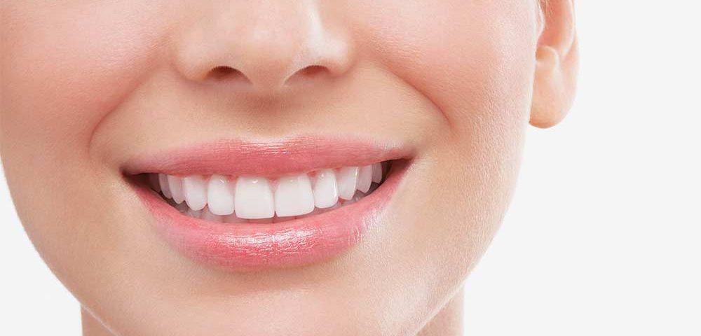 ניקוי שיניים